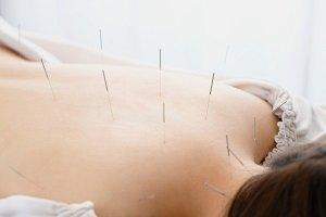 Dagmara Miszczak - Fizjoklinika Gorzów - Akupunktura i fizjoterapia